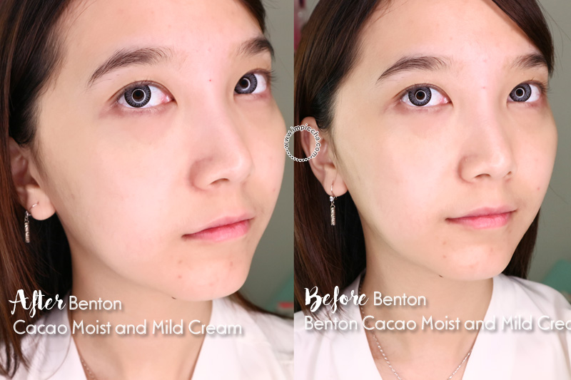 Before - After Review Benton Cacao Moist and Mild Cream