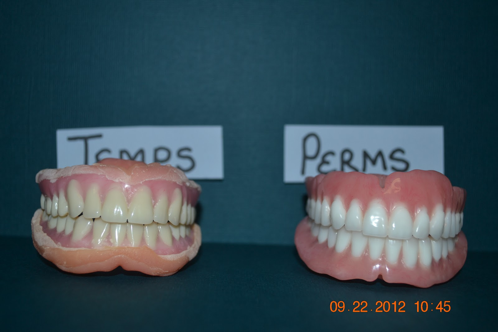 Temporary vs permanent dentures iweardentures permanent dentures solutioingenieria Image collections