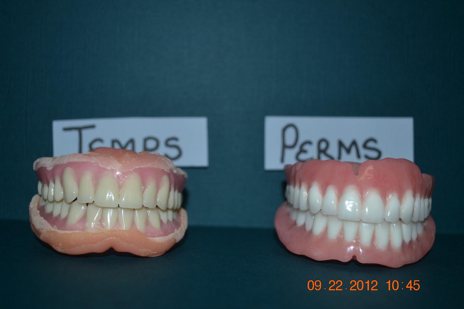 immediate dentures vs permanent dentures