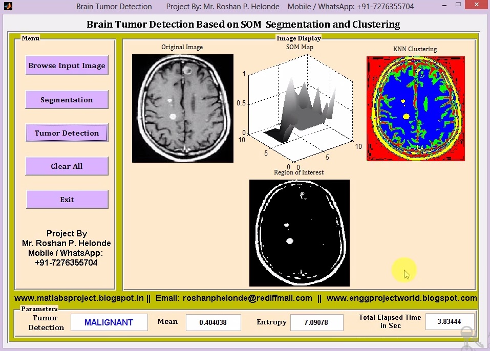Brain Tumor Detection on MRI Images Using Segmentation and