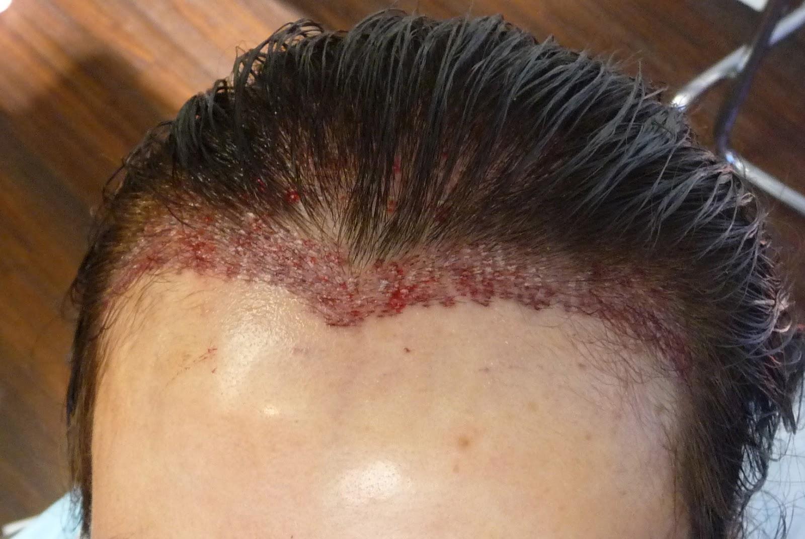 back of head hair not growing