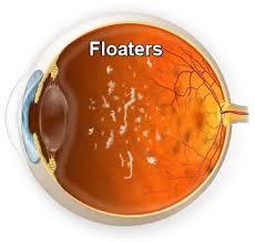 flotadores de visión para la diabetes