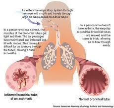 Suplemen untuk Infeksi Saluran Pernafasan Akut
