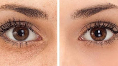 cure-dark-circles-in-quick-effective-way