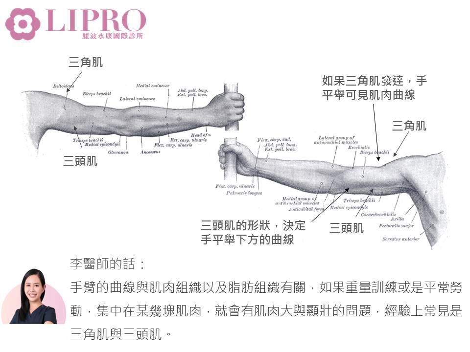 抽脂瘦手臂 瘦手臂 顯微套管抽脂瘦手臂 抽脂瘦手臂 手臂曲線 顯微抽脂