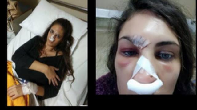 Μυστηριώδες ατύχημα του μοντέλου Ναστάζια Μητροπούλου- Νοσηλεύεται στο νοσοκομείο Ναυπλίου