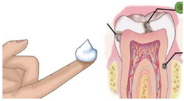De ce medicii stomatologi nu ti-au spus asta? O metoda usoara de a combate cariile acasa, cu ajutorul uleiului de cocos!