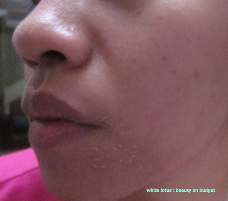 Lotus Face Moisturizer Review