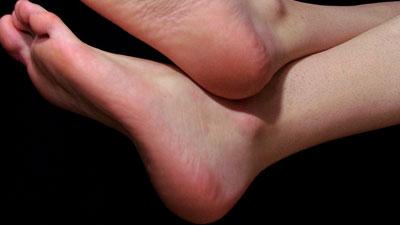 tumit kaki tidak pecah-pecah