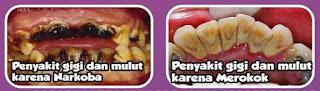 Cara menghindari kerusakan gigi