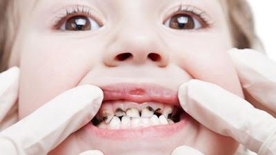 Sâu răng sữa có nên hàn răng sâu cho trẻ không ?