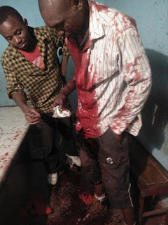 image prostitute stabbed in zimbabwe www.physinews.com
