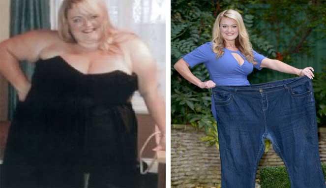 Kanker Payudara Sulit Dideteksi pada Wanita Obesitas