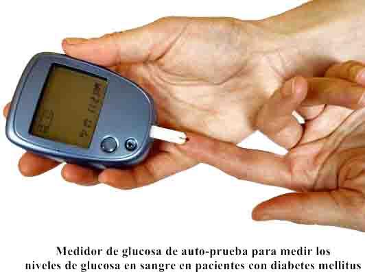 Diabetes mellitus tipo 1 y 2: causas, diagnóstico, tratamiento, prevención