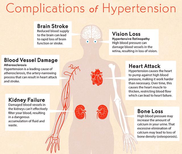 Force Flow Of Blood: The Health Website : High Blood Pressure (Hypertension