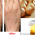 Woman Removed The Brown Spots On Her Hands By Simply Using This Cream!