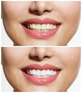Dental Veneers and Teeth Whitening are Bringing New Smiles to Many