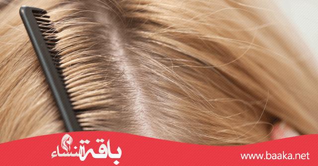 أفضل الوصفات الطبيعية للتخلص من قشرة الشعر نهائيا
