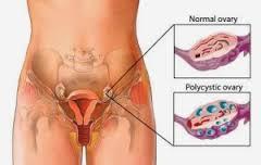 Obat untuk penyakit sipilis Untuk wanita