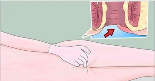 6 signes précoces et alarmants du cancer anal, dont les gens sont embarrassés de parler !