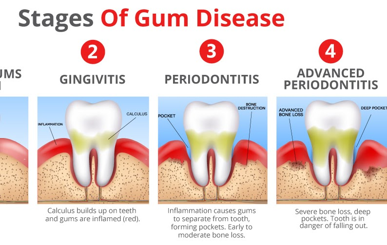 peridontal gum disease essay It's one of the worst parts of a dental checkup — painful probing with sharp instruments to look for signs of gum disease the time-consuming and sometimes bloody process keeps patients.