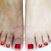 Feet Whitening Pedicure At Home - Make Your Feet White And Glowing