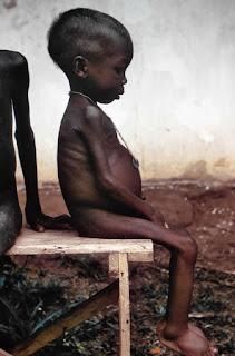 Niño hambriento en Biafra