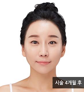 4 bulan setelah treatment anti aging di wonjin