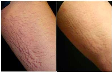 Laser Treatment for Stretch Marks BEFORE and AFTER Pictures 002
