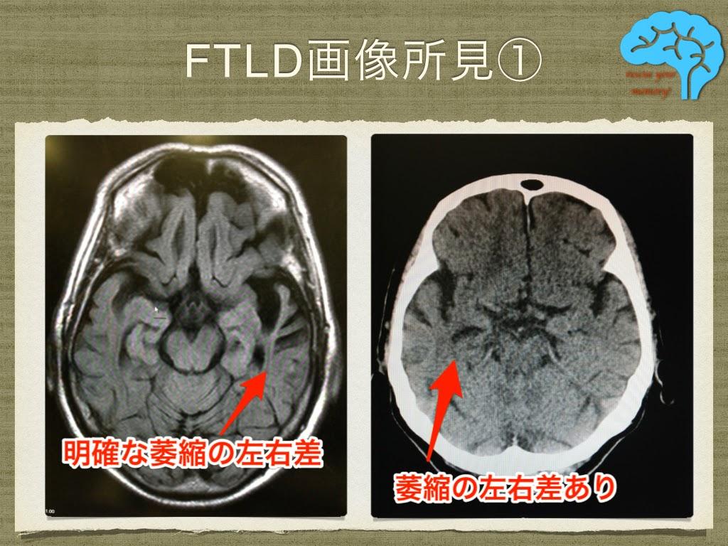 前頭側頭葉変性症の画像①