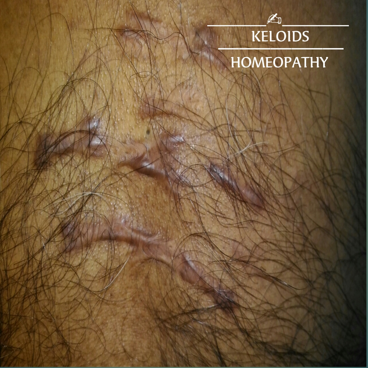 KELOID , HOMEOPATHY TREATMENT , CAUSE , SYMPTOMS AND