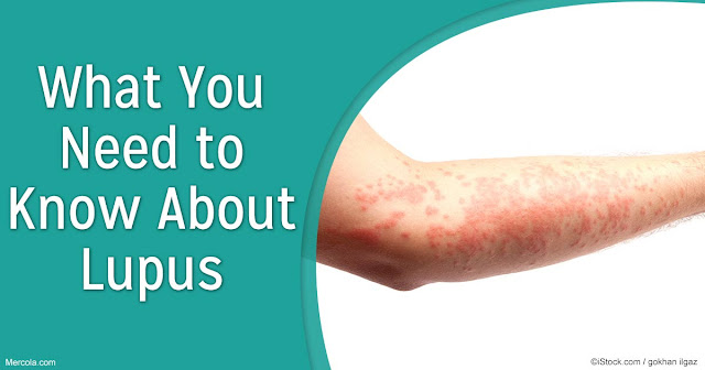 Lupus - Facts, Symptoms And Causes