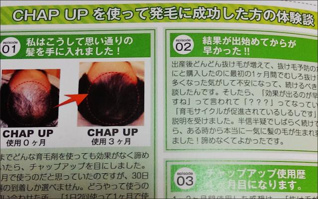 「チャップアップ」に変更!届いた育毛アイテムを検証してみます!!!