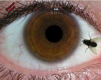 Мухи пред очите: причини и методи за лечение