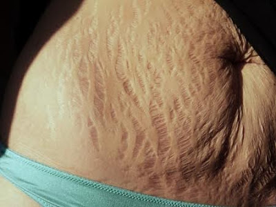 When stretch marks become embarrassingthen you need