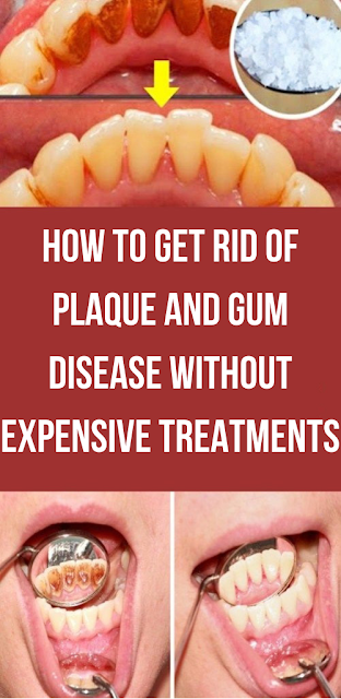 How To Get Rid Of Plaque and Gum Disease Without Expensive Treatments