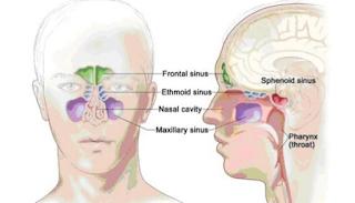 pengobatan sinusitis tanpa operasi