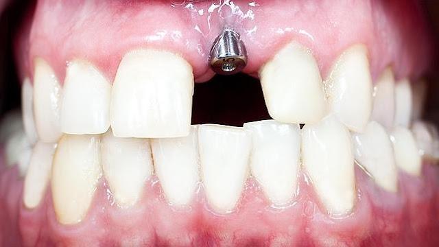cuanto cuesta un implante dental en sonria