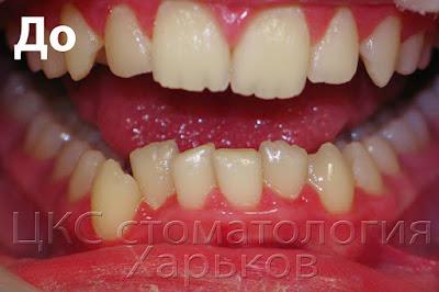 Фото зубов с выдвинутыми вверх резцами
