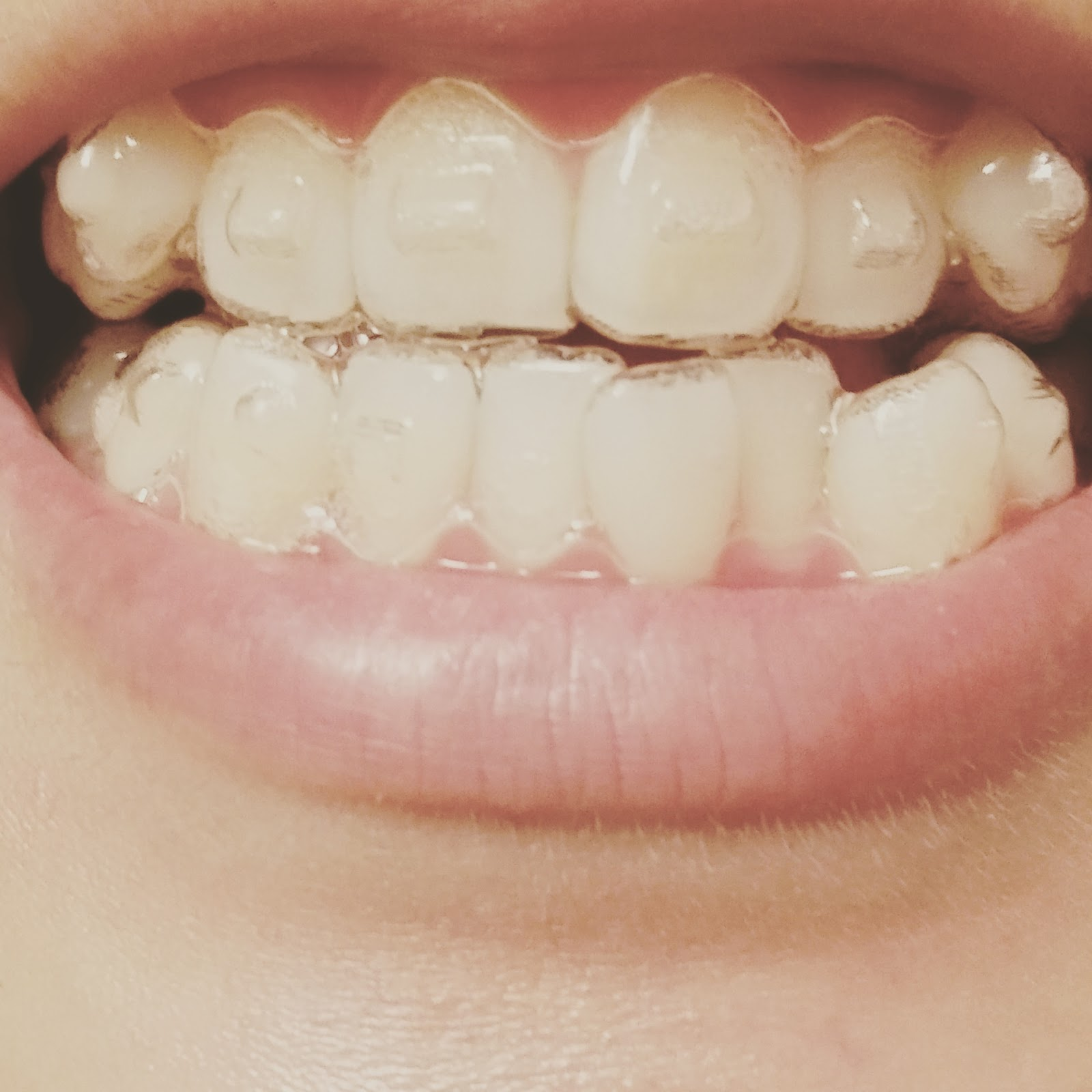 Vampire Teeth End