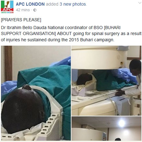 Buhari's 2015 Presidential Election Campaigner Undergoes Spinal Surgery