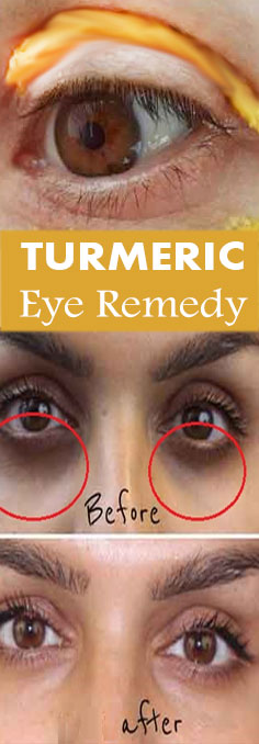 Turmeric Mask remedy