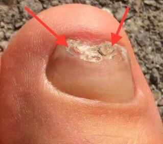 Fußnagel löst sich ab Fußnagelpilz  Jenn Cosmetic.