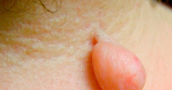 NATURAL TIPS TO REMOVE SKIN TAGS