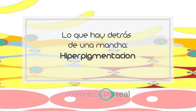 Lo que hay detrás de una mancha: Hiperpigmentación