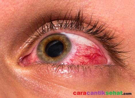 Cara mengobati mata merah dengan bahan alami