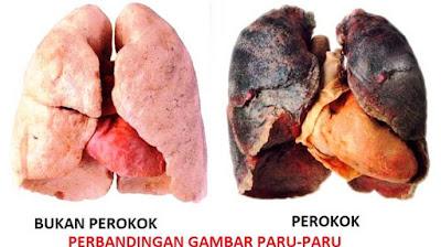 paru-paru rosak perokok aktif