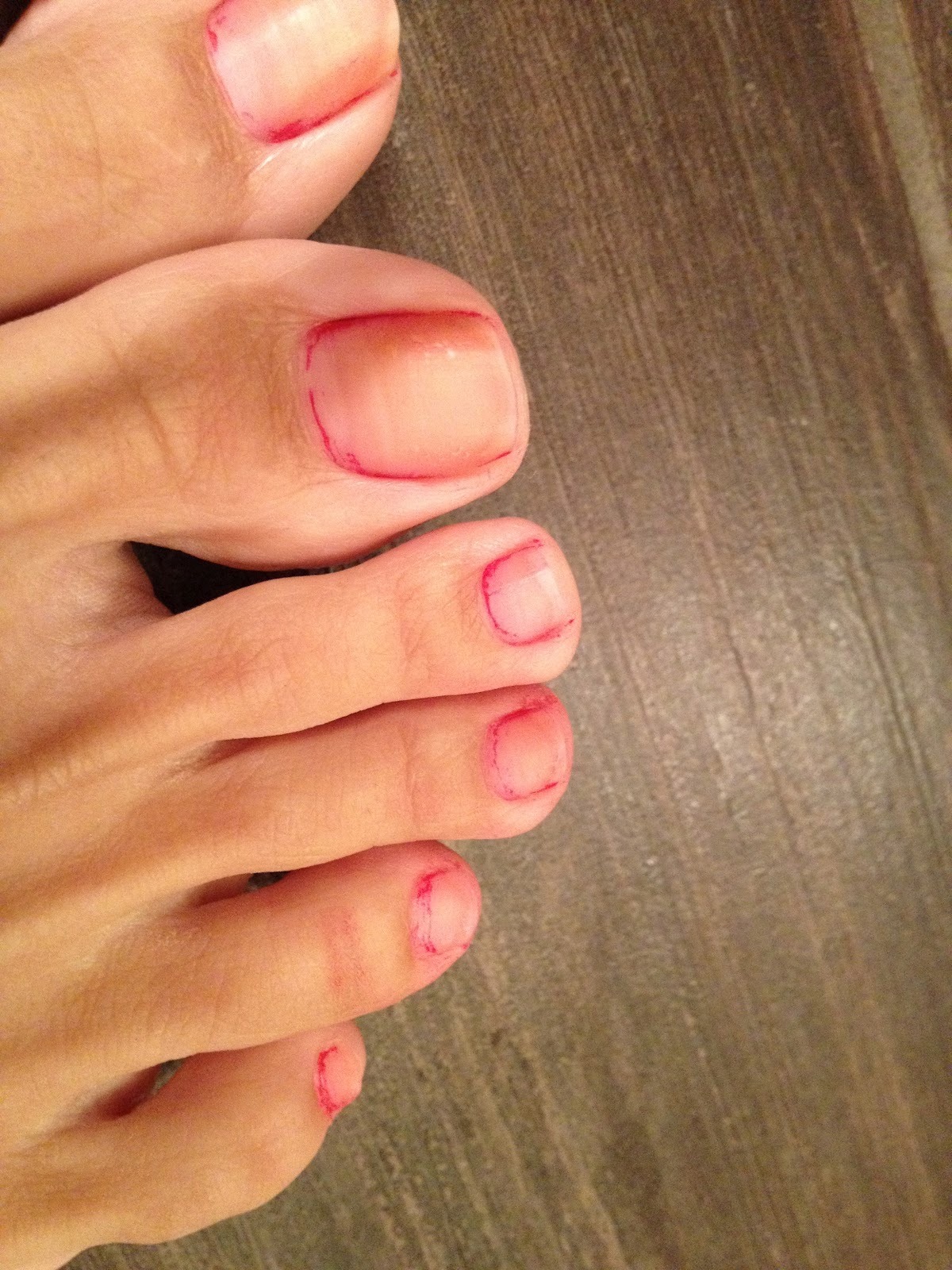 Yellow Toenails And Diabetes: Doodles & Stitches: Nail Whitening REVIEW