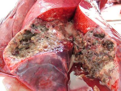 penyakit tibi paru-paru