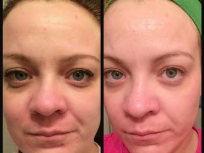 best Rodan And Fields Skin Care Reviews